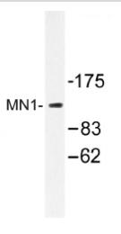 AP01176PU-N - MN1