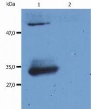SM3062P - Human IgG