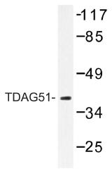 AP01186PU-N - TDAG51 / PHLDA1