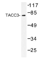 AP01187PU-N - TACC3 / ERIC1