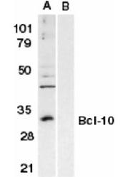AP05829PU-N - Bcl-10