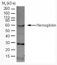 AP05441SU-N - Hemoglobin