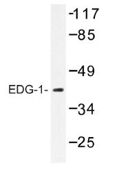 AP01197PU-N - EDG1 / S1P1