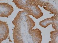 AP05510PU-N - Kallikrein-3 / PSA / KLK3