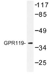 AP01207PU-N - GPR119
