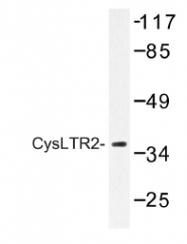 AP01211PU-N - CYSLTR2