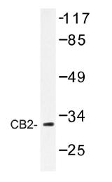 AP01212PU-N - Cannabinoid receptor 2