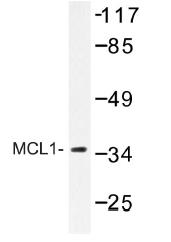 AP01226PU-N - MCL1