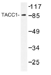 AP01228PU-N - TACC1 / Taxin 1
