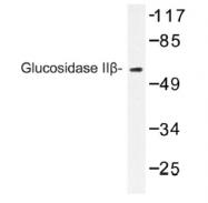 AP01229PU-N - Glucosidase 2 subunit beta