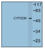 AP01245PU-N - CYP2D6