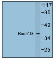 AP01250PU-N - RAD51L3
