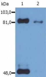SM3126P - STAT1