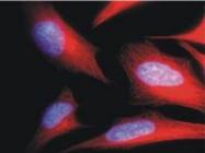 BM753S - alpha Tubulin / TUBA1B