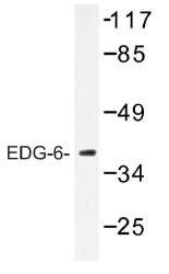 AP01255PU-N - EDG6 / S1P4
