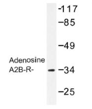 AP01260PU-N - Adenosine receptor A2b