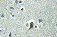 AP01263PU-N - PTH Receptor 1