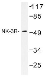 AP01273PU-N - Tachykinin receptor 3 (TACR3)