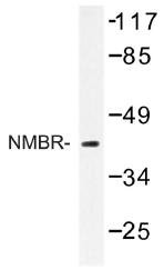 AP01274PU-N - Neuromedin B receptor
