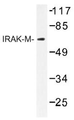 AP01287PU-N - IRAK3