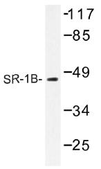 AP01290PU-N - Serotonin receptor 1B (HTR1B)