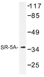 AP01292PU-N - Serotonin receptor 5A (HTR5A)