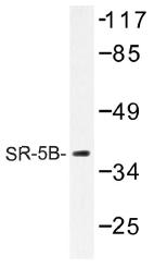 AP01293PU-N - Serotonin receptor 5B (HTR5B)