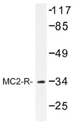 AP01306PU-N - MC2-R