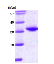 AR09087PU-L - Thiopurine methyltransferase (TPMT)