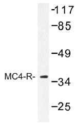 AP01319PU-N - MC4-R