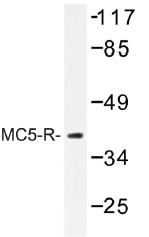 AP01320PU-N - MC5-R