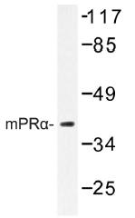 AP01321PU-N - PAQR7 / MRPA