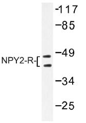 AP01323PU-N - NPY receptor 2 / NPY2R