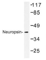 AP01329PU-N - Neuroserpin / SERPINI1