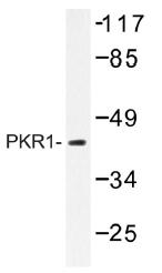 AP01335PU-N - PRKAR1A
