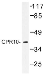 AP01336PU-N - PRLHR / GPR10