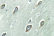 AP01351PU-N - Calmodulin