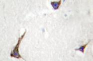 AP01356PU-N - Syndecan-4 (SDC4)
