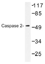 AP01357PU-N - Caspase-2