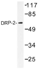 AP01367PU-N - DRP2
