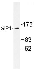 AP01369PU-N - ZFHX1B