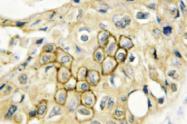 AP01373PU-N - CD9