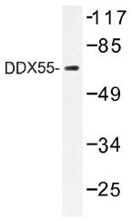 AP01384PU-N - DDX55