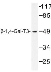 AP01385PU-N - B4GALT3