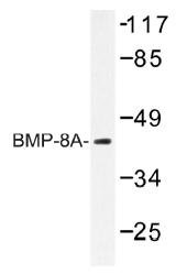 AP01386PU-N - BMP8A