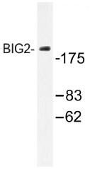 AP01387PU-N - ARFGEF2