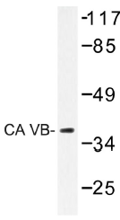 AP01389PU-N - Carbonic anhydrase 5B