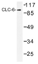 AP01392PU-N - CLCN6