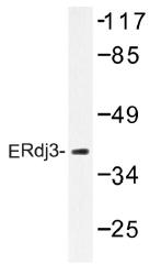 AP01395PU-N - DNAJB11