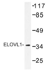 AP01399PU-N - ELOVL1